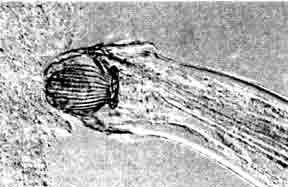 Camallanus cotti, присосавшийся с помощью головной капсулы к слизистой оболочке кишечника.