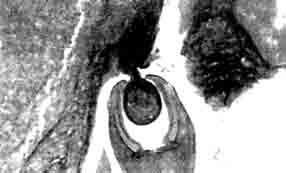 Разрез головной капсулы Camallanus cotti, присосавшейся к стенке кишки.
