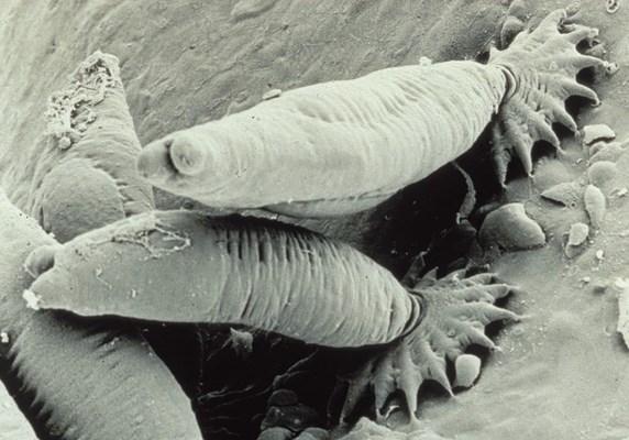 сосальщики паразиты человека таблица